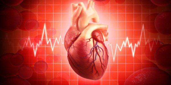 Ишемическая болезнь сердца .