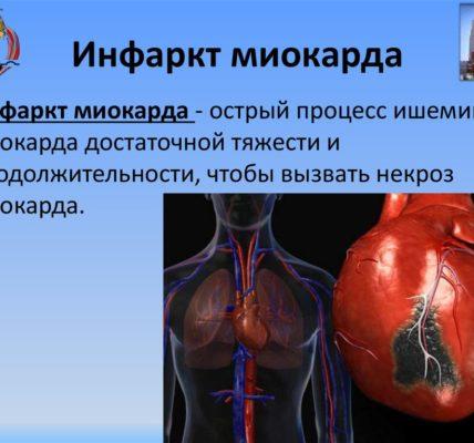 Инфаркт миокарда.