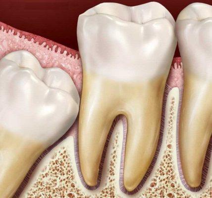 Ретинированный зуб .