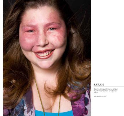 Синдром Стерджа-Вебера.