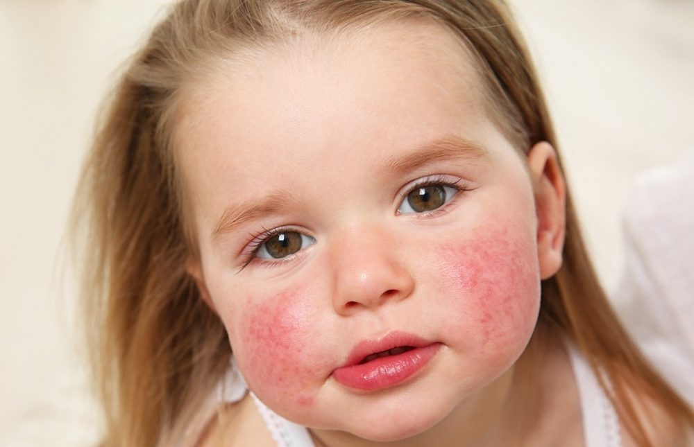 Аллергические заболевания у детей.Симптомы и лечение.